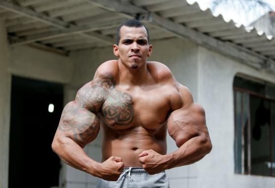 巴西男子为成为绿巨人竟向手臂注射燃油