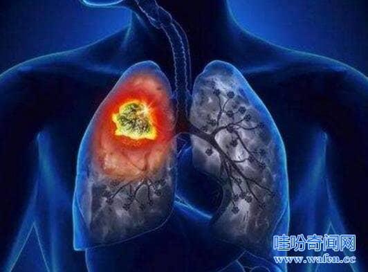 最容易死亡的十大癌症榜首每年死59万存活率仅18